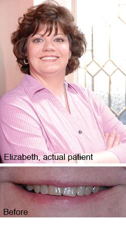 Union Dental Health in Lewisburg